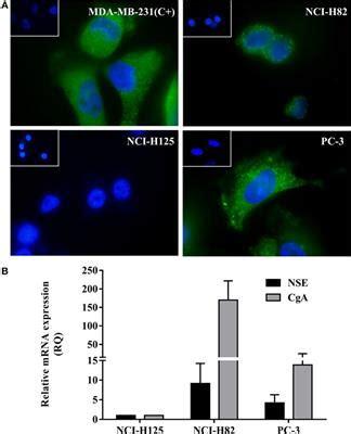 Neuroendocrine Tumor of the Ampulla of Vater: A Rare
